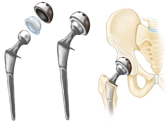 When to Consider Hip Replacement